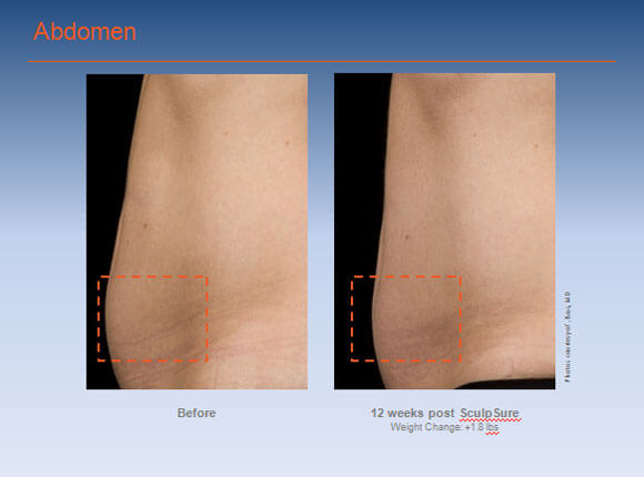 SculpSure-Before-After-Abdomen-01