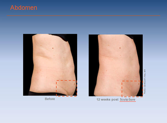 SculpSure-Before-After-Abdomen-02
