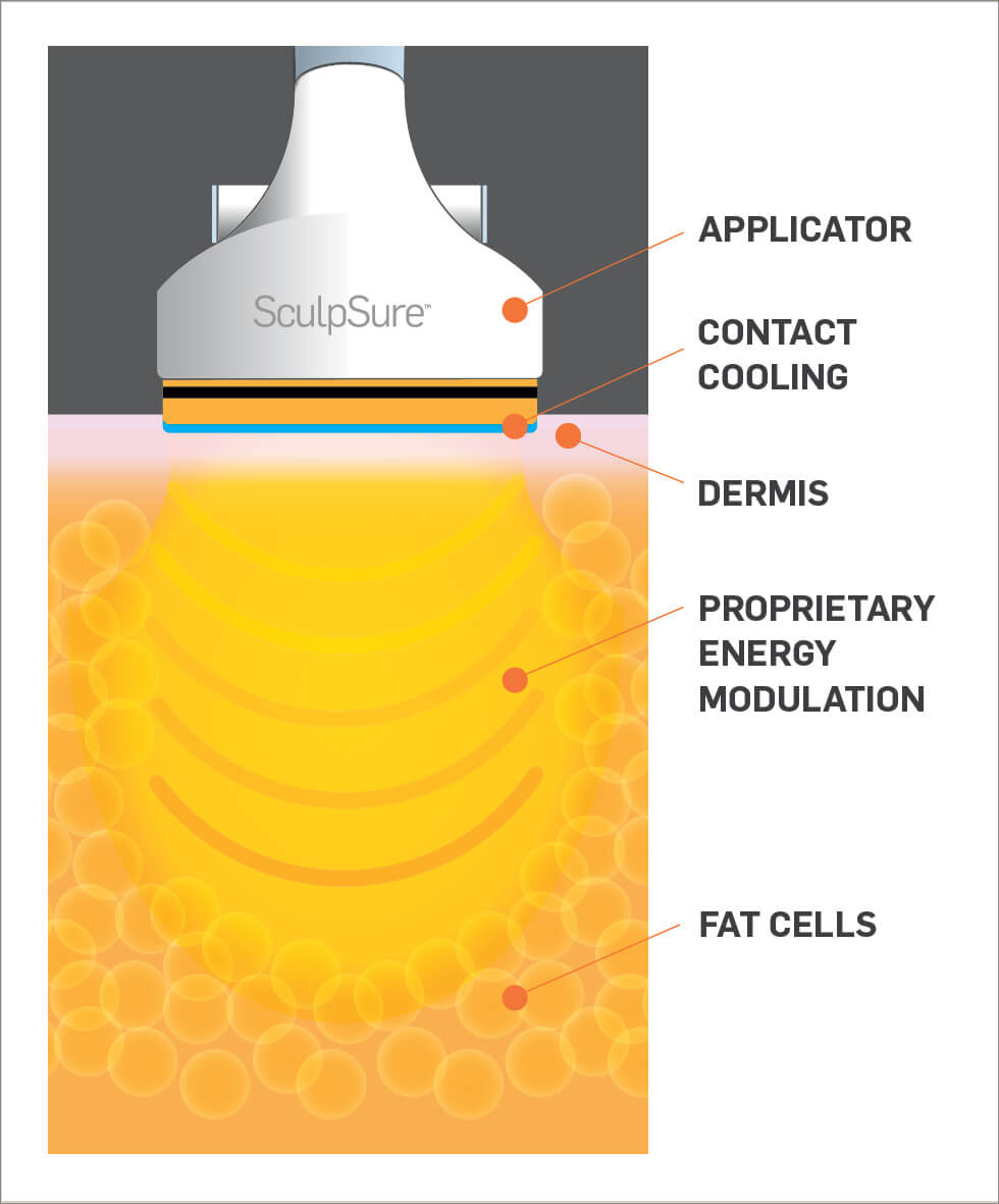 SculpSure-MOA-Still-B